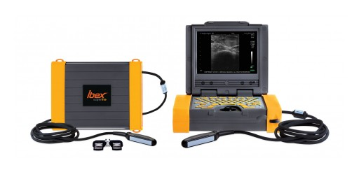 E.I. Medical Imaging Announces the Release of Ibex® Pro-R and SuperLite Ultrasound Systems