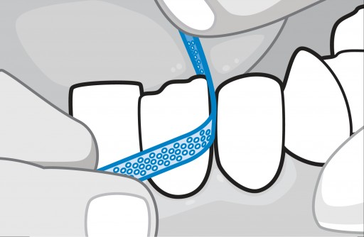 Facts About Interproximal Reduction (IPR) From the Sacramento Dentistry Group