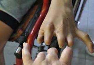 Hands of Agent Orange