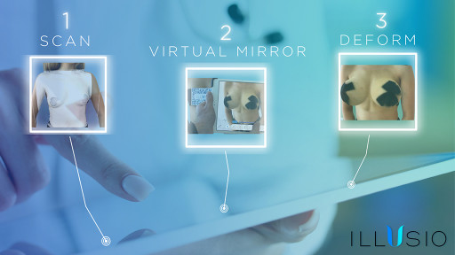 Augmented Reality Virtual Mirror is Revolutionizing Plastic Surgeon Consultations for the Future