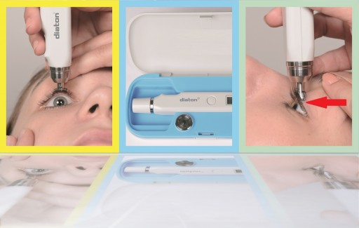 Unique Tonometer, Diaton, Helps to Meet and Exceed Joint Commission Guideline for Disinfection and Sterilization
