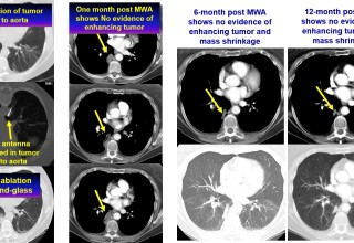 Lung tumor next to aorta treated with microwave ablation