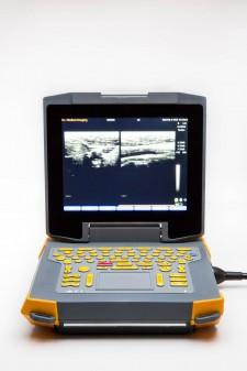 Ibex® EVO® Portable Ultrasound