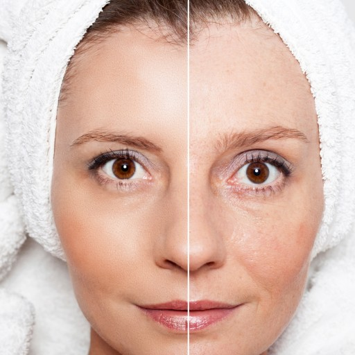 Skin Tightening Treatments on the Rise