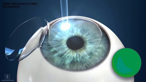 Lasik Surgery Blade Vs Bladeless Zionsville PA-610-628-0545