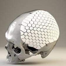 OSSDSIGN® Cranial