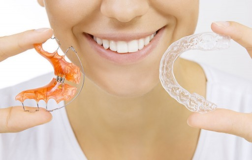 Can Overnight Retainers Lead to Cavities? A Response from the Sacramento Dentistry Group