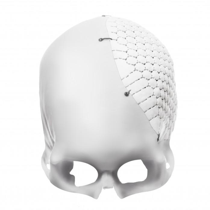 OSSDSIGN Cranial