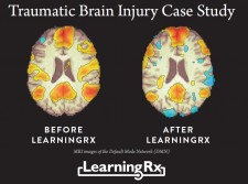 Normal Default Mode MRI Scans pre and post LearningRx training