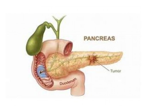 Pancreatic Fistula Treatment Market Development in 2019