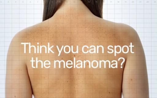 MoleSafe USA Launches Creative, Interactive Challenge for Skin Cancer Awareness Month