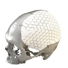 OSSDSIGN Cranial PSI