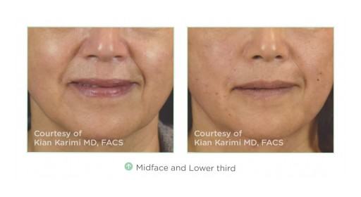 Non Surgical Aesthetics Are in High Demand, So Thread Lifts Are a New Way to Achieve Instant Skin Tightening