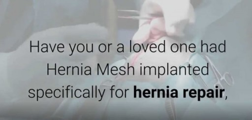 Hernia Mesh Lawsuit Claim-Call 866-382-5297