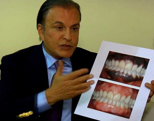 Dr. Alex Farnoosh, Cosmetic Dentist & Periodontist in Beverly Hills Introduces a Novel Technique