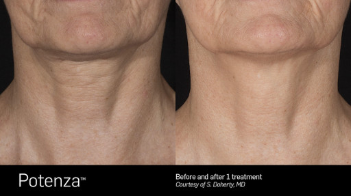 Dr. Anne Truitt and Dr. Barbara Martin Introduce Potenza RF Microneedling to San Diego