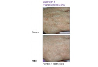 Pigmented and vascular lesions
