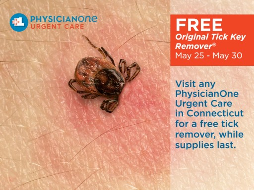 Free Tick Removers Available in Connecticut During Memorial Day Weekend