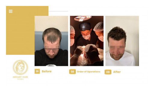High-Tech Hair Transplants in Turkey Drive the Global Market's Growth