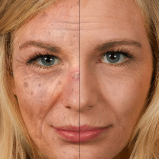 New Selfie-App Helps to Prevent Skin Cancer