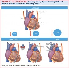 Central Illustration for Coronary Artery Bypass Grafting With and Without Manipulation of the Ascending Aorta