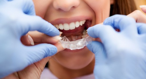 Dentist Dr. Alla Dorfman of All Smiles Dental Warns Patients About the Risks Associated With Direct-to-Consumer Orthodontics or 'Teledentistry' Such as At-Home Teeth Aligners