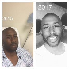 Before and After Cancer