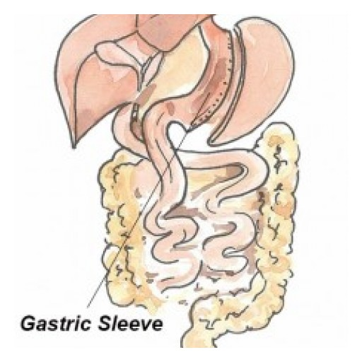 GastricSleeve.org Launches Discount Vertical Sleeve Surgery Packages for Mexico