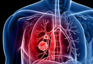 Diagnosed With Lung Cancer or Mesothelioma?