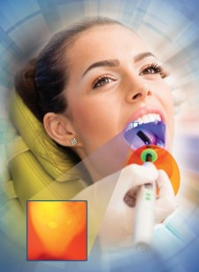 Illuminated Dental Caries (Cavities)
