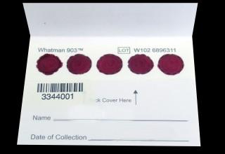 Dried blood spot card