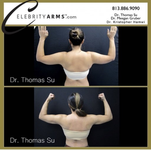 Dr. Su's Revolutionary Arm Liposuction Gives Women the Desired Celebrity Arm Look