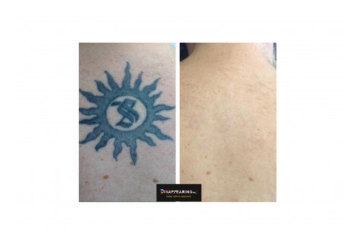 As More Americans Than Ever Get Tattooed, Tattoo Removal Booms as Does DISAPPEARING Inc.