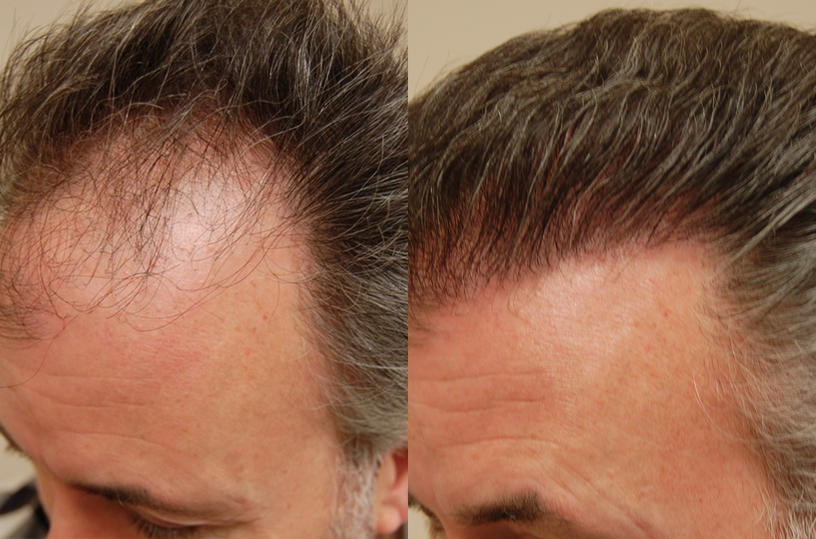 San Francisco Bay Area Leader In Robotic Hair Transplant Silicon Valley Hair Institute Announces New Post On Advantages Of Modern Hair Restoration Newswire