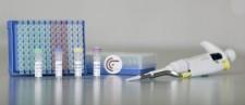 Cervical cancer test GynTect