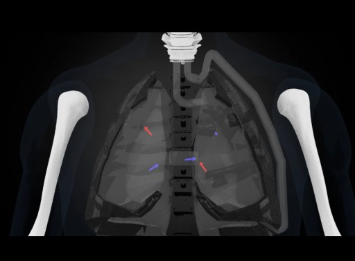 Artificial Lung Air Flow Device