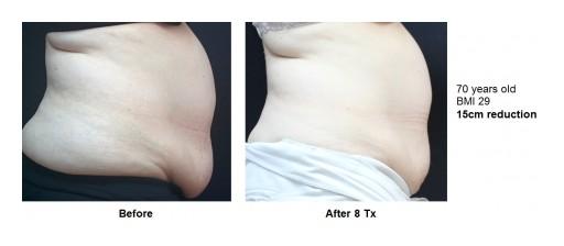 Viora Introduces V10, the Only RF Platform for Body & Facial Applications; V-FORM for Revolutionized Body Contouring