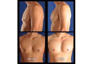 Pectoral Augmentation with Implants