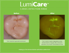 Caries illuminated with LumiCare™ Caries Detection Rinse