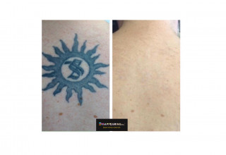 DISAPPEARING inc. Laser Tattoo Removal