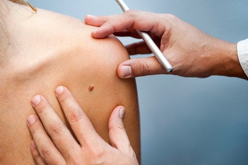 Massage Therapists Can Play an Important Role  in Early Skin Cancer Detection