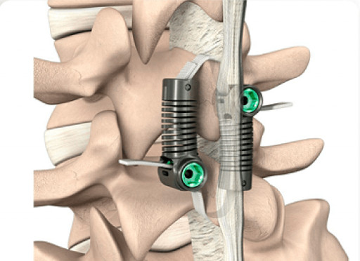 Empirical Spine Initiates PMA Submission Process for FDA Approval of Limiflex for Degenerative Spondylolisthesis