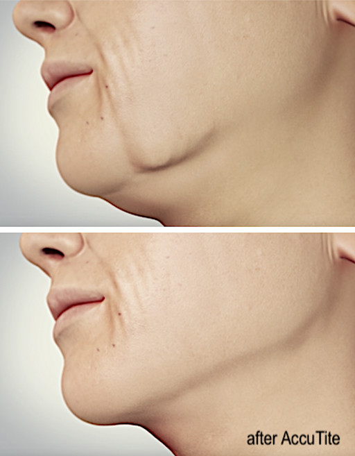 New Skin Tightening Treatments - Neck Lift at deRMA Skin Institute Guelph