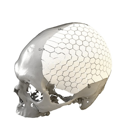 OssDsign Announces FDA 510(k) Clearance of OSSDSIGN® Cranial for Sale in the USA