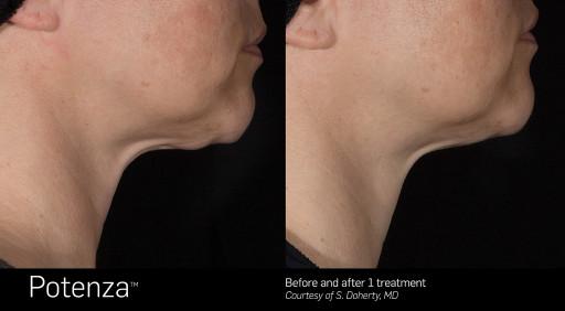RF Microneedling Shown Effective for Skin Tightening Says San Diego Dermatologist