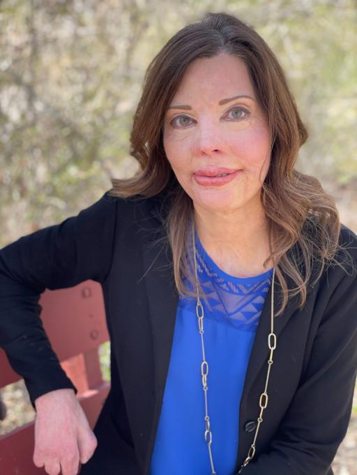 Burn Injury Survivor Shares Her Inspiring Story in New Memoir