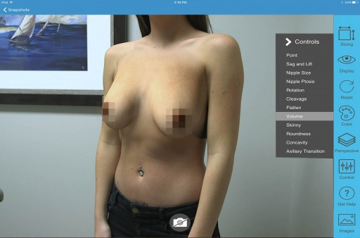 Survey Shows 97% of Women Would Prefer a Plastic Surgeon Using the ILLUSIO Breast Simulation System