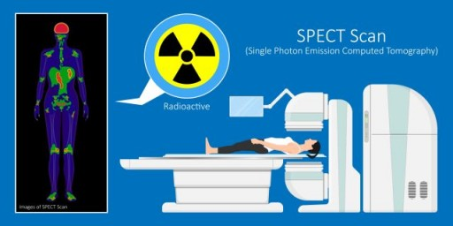 Global SPECT and SPECT-CT Market to Obtain Over US $1.90 Billion by 2025