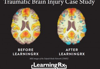 Pre and Post MRI LearningRx TBI