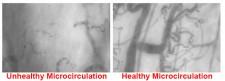 Healthy vs Unhealthy Microcirculation